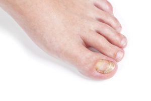 Fungal Nail Treatment Options