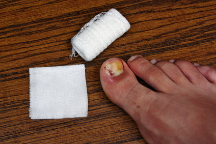Ingrown Toenail Treatment